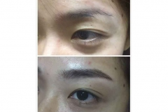 4-Enhance eyebrow embroidery