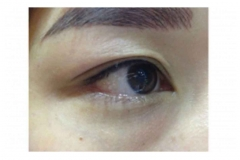 1-Semi Permanent Eyeliner Embroidery Singapore